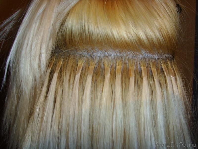Клиники по пересадке волос