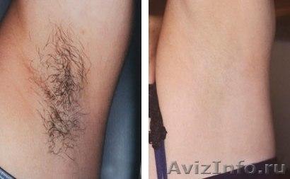 удаление волос навсегда в домашних условиях отзывы